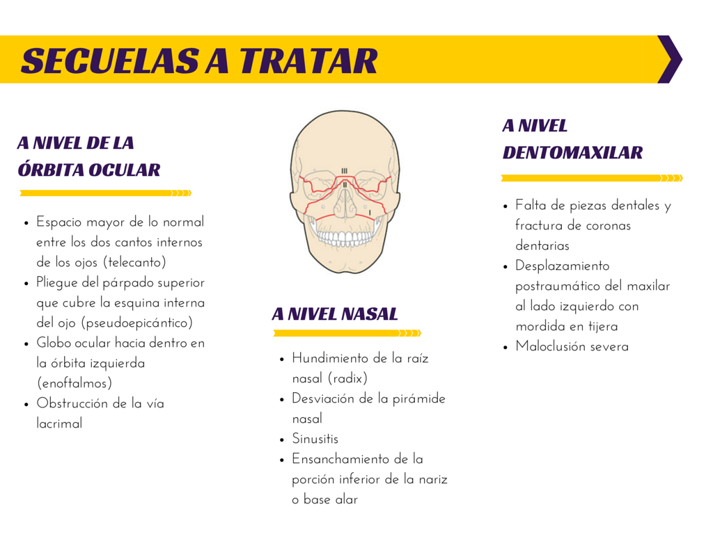 SECUELAS A TRATAR-2