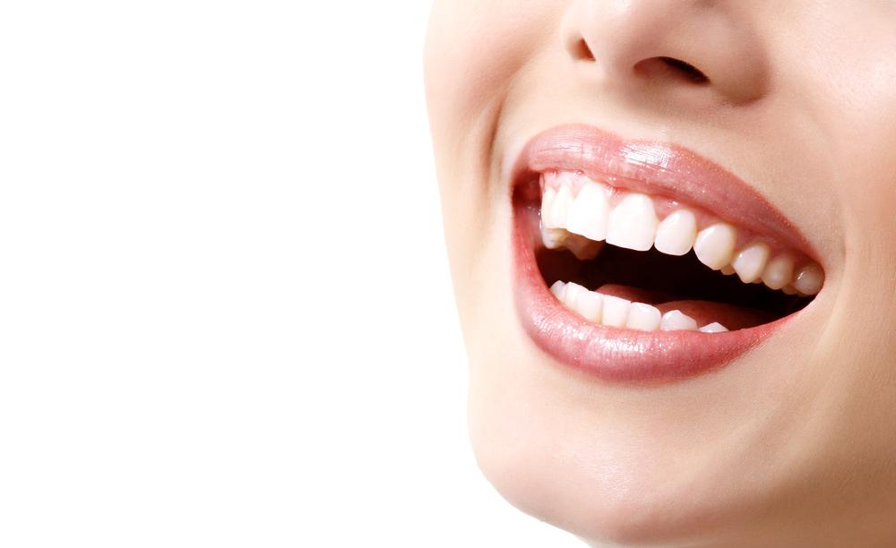 estetica sonrisa gingival