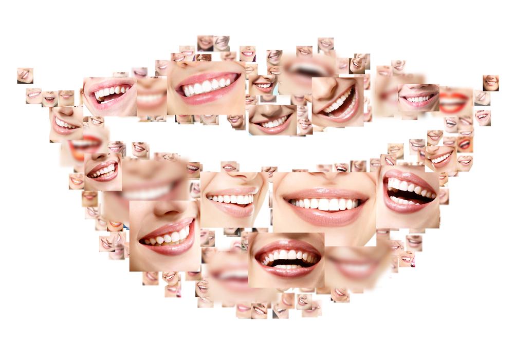 Día Mundial dela Sonrisa, estética dental, odontología estética
