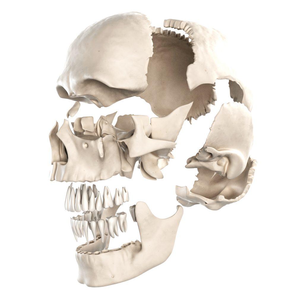 secuelas de reconstrucciones faciales postraumáticas