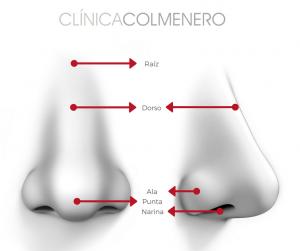 La rinoplastia permite tener una nariz ideal